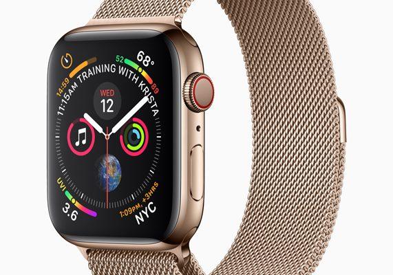 Die beste Smartwatch